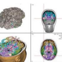 EEG Data Analysis - BESA Source Analysis