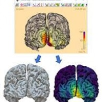 New EEG workshop BESA - Free of charge